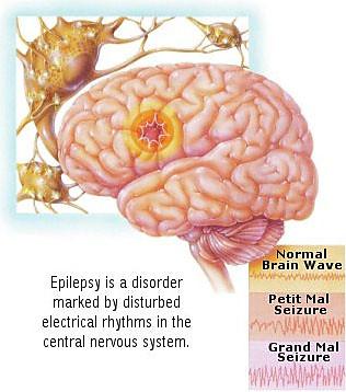 Epilepsy by ilovepiano