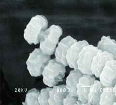 Aspergillus niger var. niger van Tieghem 2 (RVCTA Imágenes) Tags: aspergillus secciónnigri