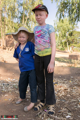 "PHALOMBE ALBINISM FESTIVAL • <a style=""font-size:0.8em;"" href=""http://www.flickr.com/photos/132148455@N06/23247942183/"" target=""_blank"">View on Flickr</a>"