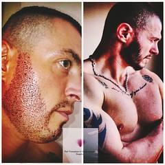 #hair_transplant #hair #health #plasticsurgery #plastic_surgery #saç_nakli #saç_ekimi #sakal #Beard_Transplant #Beard #Transplant  WhatsApp or viber contact us 00905365435176 ☎️📞 (hairhospital) Tags: hairtransplant hair health plasticsurgery saçnakli saçekimi sakal beardtransplant beard transplant