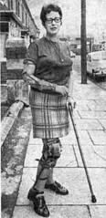 Arm-Leg Hemiplegic polio (jackcast2015) Tags: handicapped disabledwoman crippledwoman wheelchair paralysed poliogirl armbrace hemiplegic legbraces calipers polio