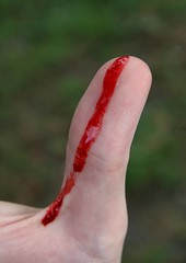 Open cuts like this bleeding thumb cause the need for blood spot or stain removal from clothes