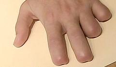 finger amputation (weaponeer) Tags: stumps amputations amputee fingers operations hand partialhandamputation finger stump scar amputation injury tramatic nubs fingerstump stumpy cutofffingers choppedofffingers scars messedup nub