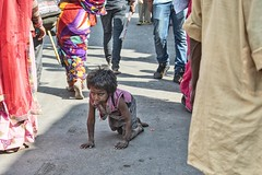 INDIA7455 (Glenn Losack, M.D.) Tags: street people india portraits children photography delhi muslim islam poor photojournalism buddhism impoverished flip flops local pushkar hindu sick scenics handicapped deformed beggars crippled paralyzed glennlosack losack glosack dahlits