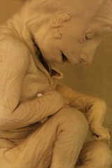 IMG_2251 (anthrax013) Tags: saint petersburg kunstkamera anatomy science medicine dead baby death necro necrophilia corpse abortion formalin