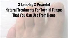 toenail fungus treatment a must watch (curefortoenailfungus) Tags: toenail fungus treatment home natural remedies best fugnus nasty must watch