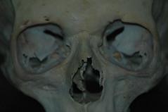 decay 05 (Vina the Great) Tags: human skull decay bone