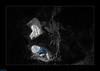 Entrée de la Cheminée du bois de Folle - la Chapelle Sur Furieuse - Jura (francky25) Tags: entrée de la cheminée du bois folle chapelle sur furieuse jura franchecomté grotte karst