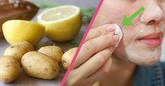 7 Easy Home Remedies To Remove Sun Tan (QZIJC3JTUR2T5RZIWRIFGWQKVO) Tags: sun tan facepack bridal tips removal