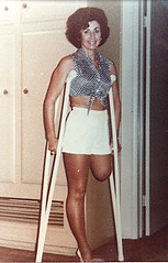 Margie24 - Elegant 1960s amputee in hot pants (jackcast2015) Tags: handicapped disabledwoman crippledwoman crutches amputee sakamputee sakamputation sak