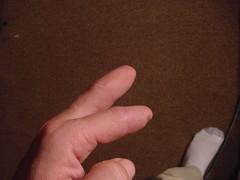 Finger Amputations (stumps) After 3 months (weaponeer) Tags: fingers fingeramputation amputee amputation stumps operation partialhandamputation finger stump scar injury tramatic nubs fingerstump stumpy cutofffingers choppedofffingers amputations scars messedup nub