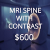 MRI SPINE (Health Beyond Insurance) Tags: mri imaging brain chest abdomen joints scan mra contrast spine neck healthcare cost insurance transparency