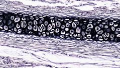 Connective Tissue: Elastic Cartilage (bccoer) Tags: histology fibers elastic collagen fibroblasts lacunae tissue human cartilage