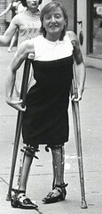 Polio Girl in braces (jackcast2015) Tags: legbraces calipers crippledwoman crutch disabledwoman disabled disabledlady polio woman