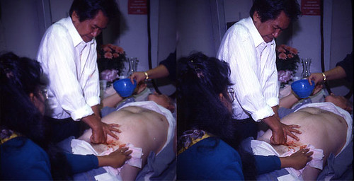 Alex Orbito Phillipino Bare Handed Surgery | Flickr - Photo Sharing!