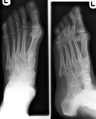 uk london hospital geotagged foot pain toe lewisham surgery xray left joint preop podiatry radiograph bunion podiatric geolat51453492 geolon0017713