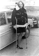 AmpettA Again (jackcast2015) Tags: handicapped disabledwoman crippledwoman crutches amputee sakamputee sakamputation sak