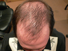 75 Days After Bosley Hair Restoration Procedure (battleagainstbald) Tags: male against hair blog seth hare pattern head bald battle surgery blad restoration bosley balding baldness propecia hairloss transplant