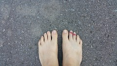 Guessing game: Which foot has injured toes? (JD and Beastlet) Tags: