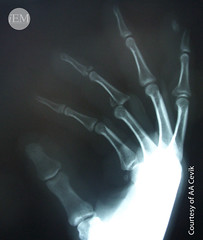 600 - Phalangeal dislocation and fracture (iem-student.org) Tags: trauma extremity injury dislocation phalanx phalangeal dip pip fracture