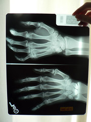 break (samuelcharlessolomonthethird) Tags: skeleton break hand finger xray bones fracture