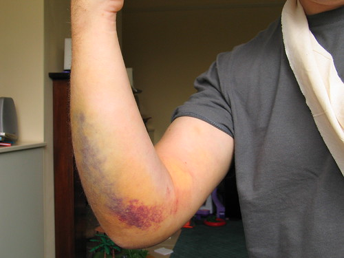 Shattered Elbow Recovery Time http://singletrackworld.com/forum/topic/dislocated-elbow-healing-time