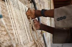 Leprosy. Addis Ababa, Ethiopia.  12/2005.