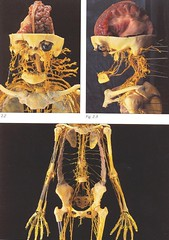 2006-3-27-Body worlds 2 exibit at the Denver Museum (15) (2) (graysonfamily) Tags: 2 museum weird pics body denver worlds corpse bizarre bodies plastination plastinated specialinterest exibit madeyoulook httpwwwmyspacecomepigee