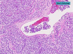 Qiao's Pathology: Ovarian Dysgerminoma (Qiao's Pathology (Art and Science in Medicine)) Tags: qiaos pathology ovarian dysgerminoma microscopic