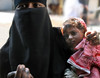 INDIA8823 (Glenn Losack, M.D.) Tags: indiapushkarphotojournalistglennlosackstreetphotographerpeoplescenicshindusanimalsmuslimsbeggingprayermelasfairsfestivalsportraitsleprosysadhusvindravanmathuravaranasikashibanarashomelessphotojournalismdeformedmasjidnewdelhi begging beggars children deformed namaste namashkar glenn losack streetphotographer streetphotography photojournalism
