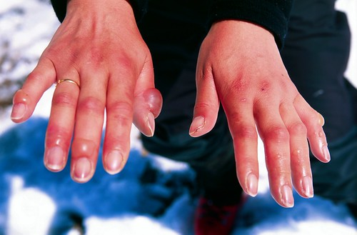 marg's fingers after the descent of aconcagua