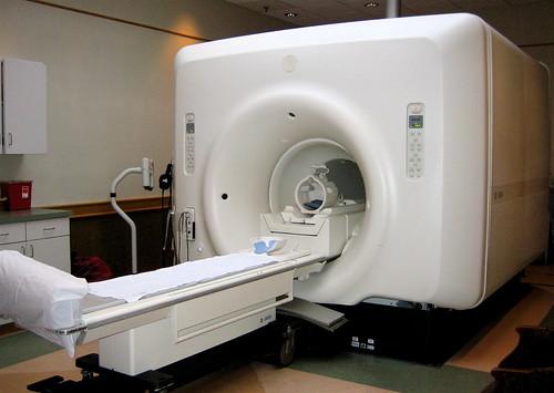 MRIで認知症は分かる?