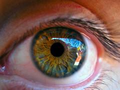 Cristobal's eye