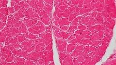 Muscle Tissue: Cross Section Whole Skeletal Muscle (bccoer) Tags: skeletal muscle tissue histology epimysium perimysium endomysium tendon actin myosin a band i sarcomere nuclei myofibrils myofibers fascicle
