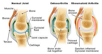 Osteoarthritis, rheumatoid arthritis