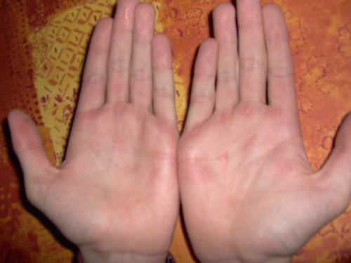 A swollen thumb contracting corporation
