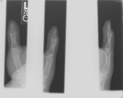 :(   x-Ray (als pictures) Tags: closed finger mallet fracture