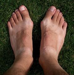 feet hospital foot pain toe lewisham surgery hairylegs joint preop podiatry bunion podiatric sockelasticanklemarks