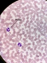 iPhone photo dump (NO NYME) Tags: iphone 2018 hawaii microscope hematology wbc rbc neutrophil thisbytinrocket mls cls mt mlt cells