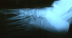 Exercise Related Leg Pain aka Shin Splints