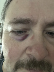 Hit Yourseldf In the Face (rchrdcnnnghm) Tags: me injury eye