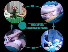 Phẫu thuật kéo núm vú tụt (dinhphuc1805) Tags:
