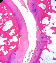 Normal Diarthrodial Joint (euthman) Tags: pathology specimen photomicrograph joint diarthrodial histology humananatomy normalanatomy musculoskeletal bone cartilage jointspace
