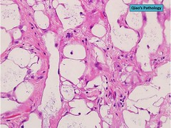 Qiao's Pathology: Uterine Adenomatoid Tumor (Qiao's Pathology (Art and Science in Medicine)) Tags: qiaos pathology uterine adenomatoid tumor microscopic
