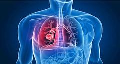 Itamarandiba tem seis casos de tuberculose confirmados (portalminas) Tags: itamarandiba tem seis casos de tuberculose confirmados