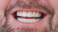 SMILE! (NicestGuyEver) Tags: teeth smile dentist honolulu alamoanadentalcare