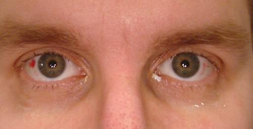 Laser Eyes!