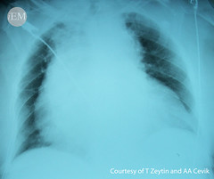 71.1 - AD1 (iem-student.org) Tags: aortic dissection aneurism aaa abdominal chest pain hypertension wide mediastinum