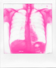 My Cavernous Heart (Irrational Photography) Tags: polaroid theimpossibleproject impossible project original originals polaroidoriginals retro vintage antique hipster old analogue analog film square photo picture onestep spectra image sx70 sx 70 600 640 autofocus slr 680 montreal quebec canada self developing instant border xray chest heart skeleton hospital magenta bone bones transparent red white scan universal health spine organ rib ribs cage hip arms veins blood breath tube stomach lungs liver kidney pancreas intestines shoulder arm clavacus blade neck throat medicine