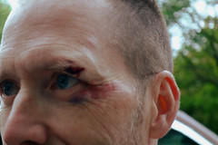 Ouch! (bgoodtrek) Tags: eye injury